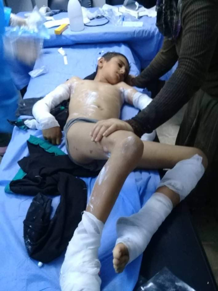 سوء وإهمال مديرية كهرباء طرطوس تودي بأطراف طفل لم يتجاوز العاشرة من عمره.
